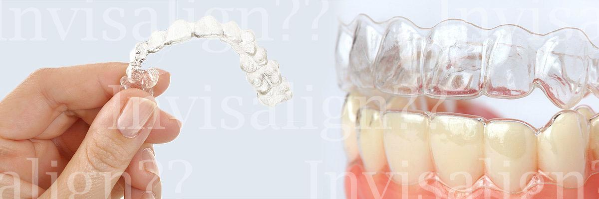 Sunnyvale Does Invisalign® Really Work?