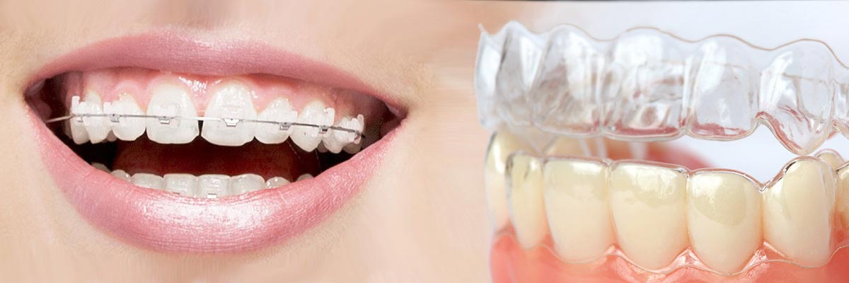 Sunnyvale Which is Better Invisalign or Braces
